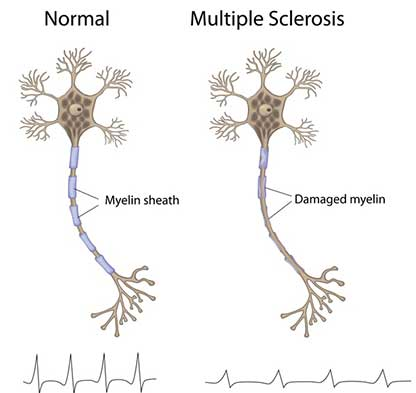 comparison between a normal myelin sheath and a damaged myelin