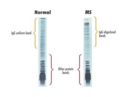 Lumbar puncture - Multiple Sclerosis Society of NZMultiple